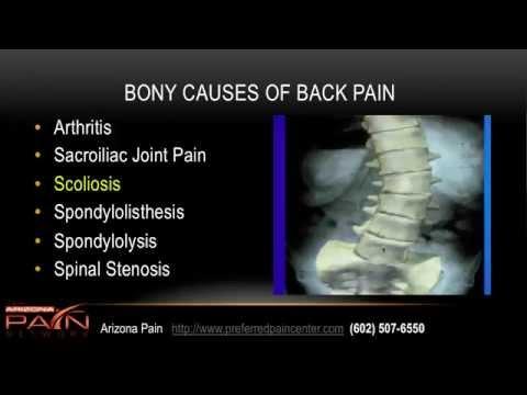 hqdefault - Back Pain Specialists In Az