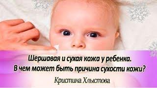 🍀 Шершавая и сухая кожа у ребенка. В чем может быть причина сухости кожи? | Кристина Хлыстова