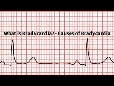 What is Bradycardia? -...