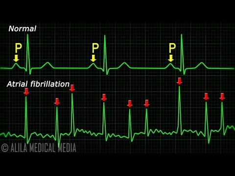 Atrial Fibrillation Anatomy, ECG and Stroke, Animation.