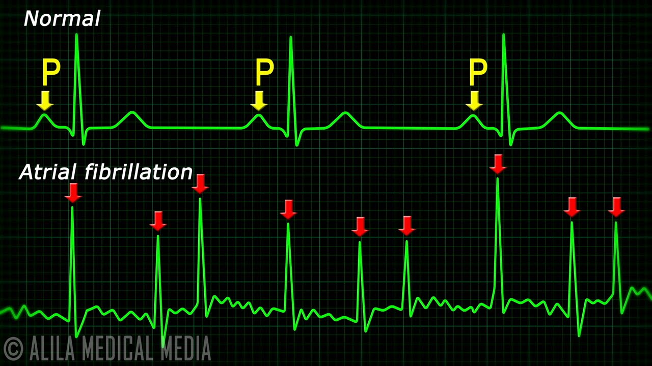 Atrial Fibrillation Anatomy, ECG and Stroke, Animation  YouTube