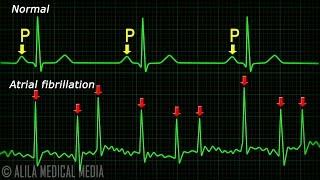 Vorhofflimmern Anatomie, EKG, Schlaganfall, Animation.