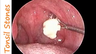 Repeat youtube video Huge Tonsil Stones Removal in a case of Chronic Tonsillitis & Allergic Rhino Sinusitis