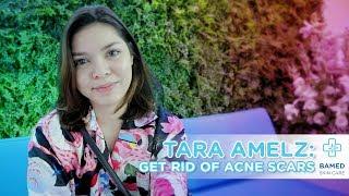 Tara Amelz: Will My Acne Scars Go Away?   Bamed Skin Care