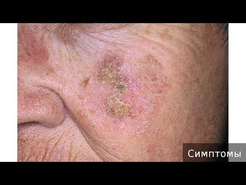 Актинический кератоз. Как лечить актинический кератоз.