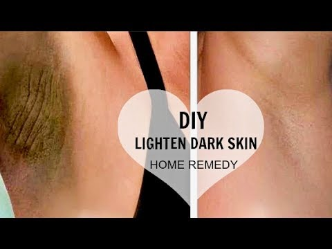 HOW TO LIGHTEN DARK UNDERARMS + SKIN NATURALLY & FAST | & DIY for Knees, Elbows, Thighs (100% WORKS)