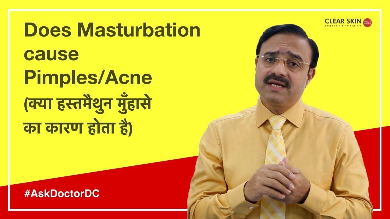 Does masturbating cause pimples