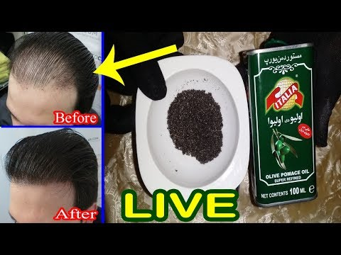 Bal Itne Aa Jayen ke Ap Hairan Ho Jayen - Baldness Treatment At Home - Hair Fall Solution