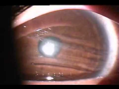 multiple corneal abrasions - YouTube