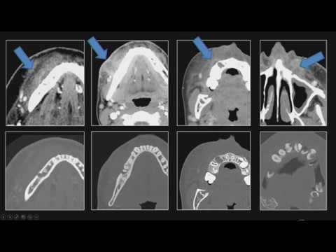 Neck and Facial Swelling (Tabby A. Kennedy, MD)