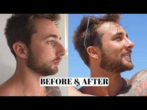 Before & After Rhinoplasty, Nose Job 12 weeks post Operation, 12 weeks after