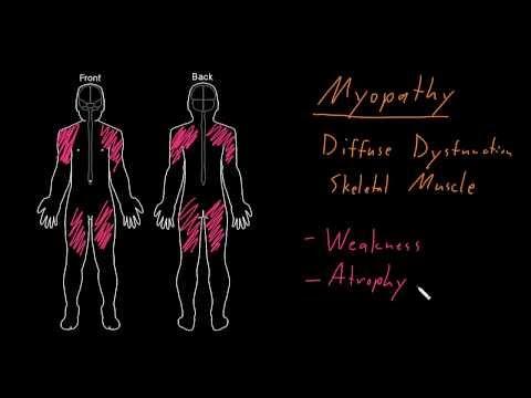 Syndrome: Myopathy