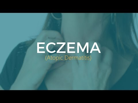 What to do if you have eczema (atopic dermatitis)