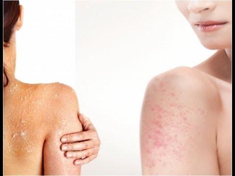 chicken-skin-rash,-home-remedies-for-keratosis-pilaris,-keratosis-pilaris-forum,-itchy-chicken-skin