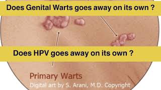 hpv warts go away on their own