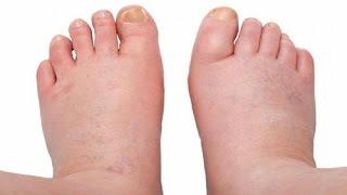 E pés veias nos tornozelos proeminentes