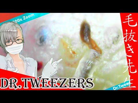 307 [200x Zoom] Something brown that suddenly appears Dr. tweezers 毛抜き先生の角栓や毛根