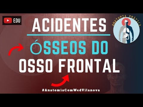 Acidentes Anatômicos do Osso Frontal