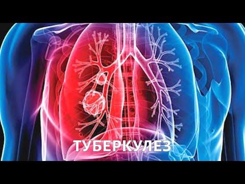 Туберкулез. Эпидемия