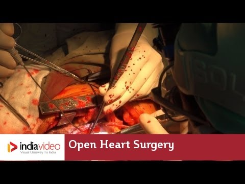 Download Youtube: Open Heart Surgery Video (Live Heart Beating) | India Video