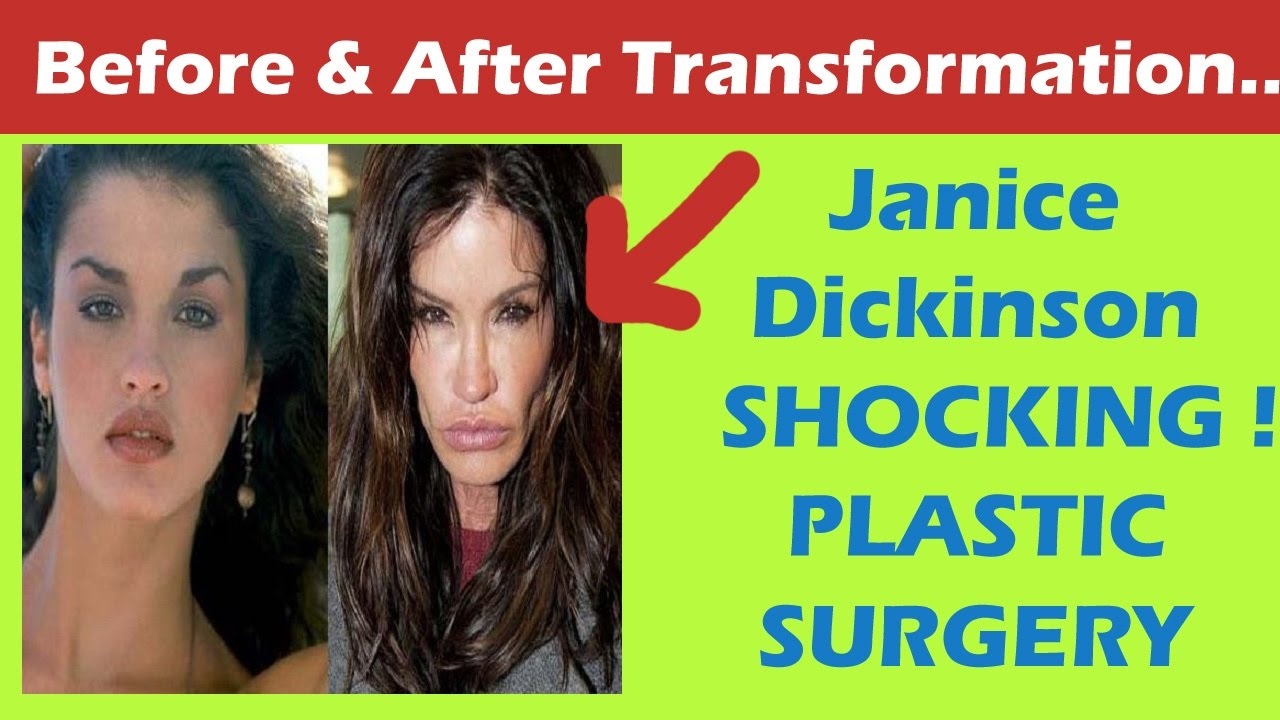 Janice Dickinson Before And After