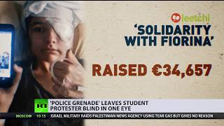 Violent clashes gone wrong: French student left blind in one eye after hit from