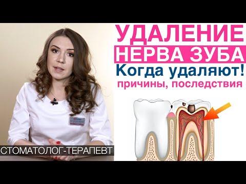 Зуб болит после удаления нерва