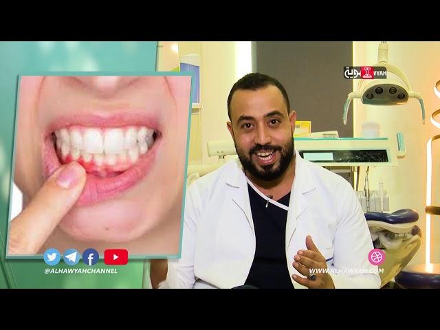 دقائق صحية | الحلقة 22 | صحة الفم والأسنان في شهر رمضان د هشام المتوكل | الجزء الثاني | قناة الهوية