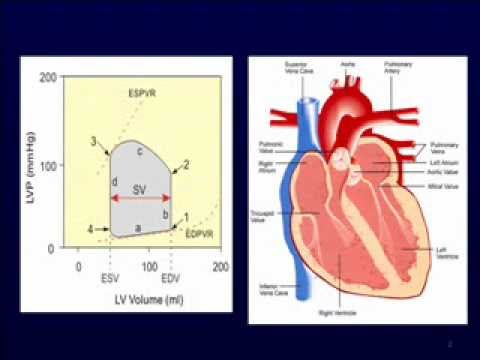 Anesthesia for Cardiovascular Disorders - Valvular Disorders
