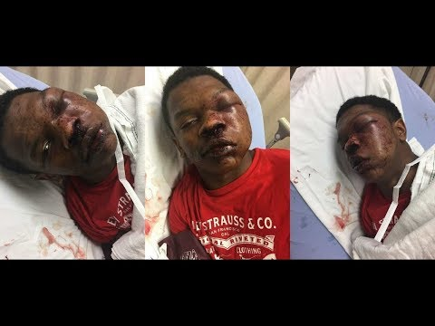 To Serve and Protect: Alabama Police Brutality Assault Teen/ The Case Of Kenneth Chamberlain Sr