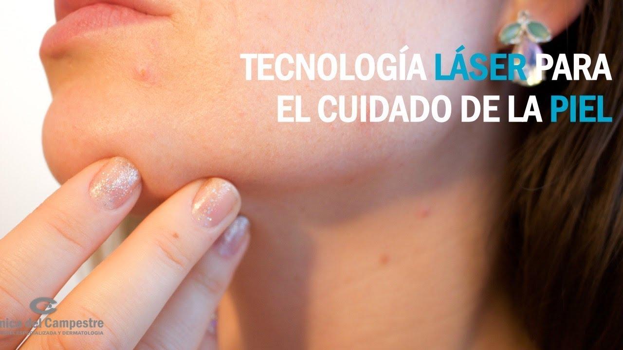 Laser para quitar las manchas dela piel