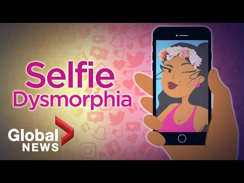 Selfie Dysmorphia: How social media filters are distorting beauty ����