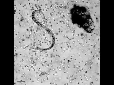 The immune system in action! how white blood cells attack a parasitic worm