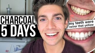 5 Days with ACTIVATED CHARCOAL! My Teeth Don