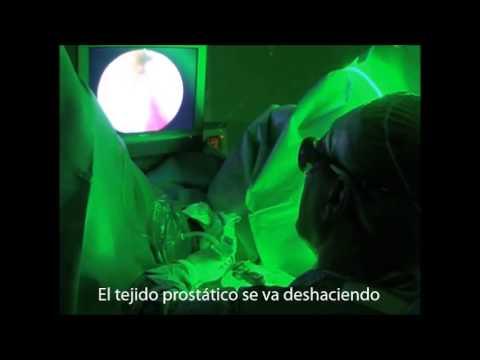 cirugía de próstata con láser de luz azul