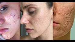 hqdefault - Types Of Acne Scaring