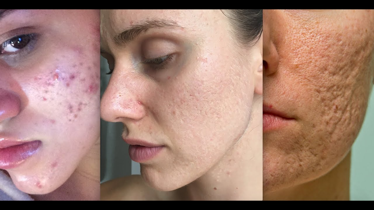 Image result for acne scars