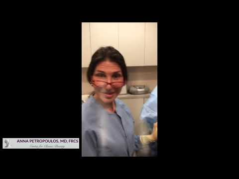Silhouette Instalift Immediate Results with Dr. Anna Petropoulos