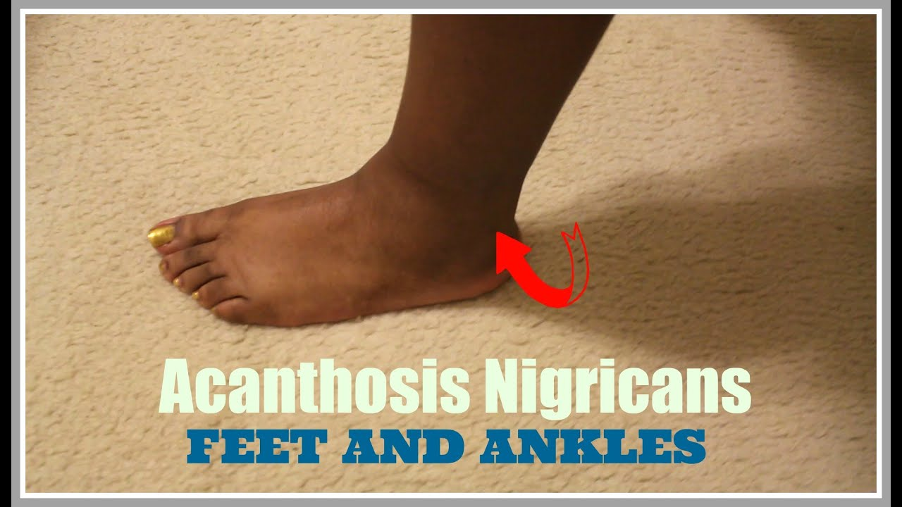 Watch Out For Dark Skin Around Your Ankles