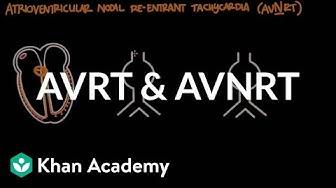 Atrioventricular reentrant tachycardia (AVRT) & AV nodal reentrant tachycardia (AVNRT)