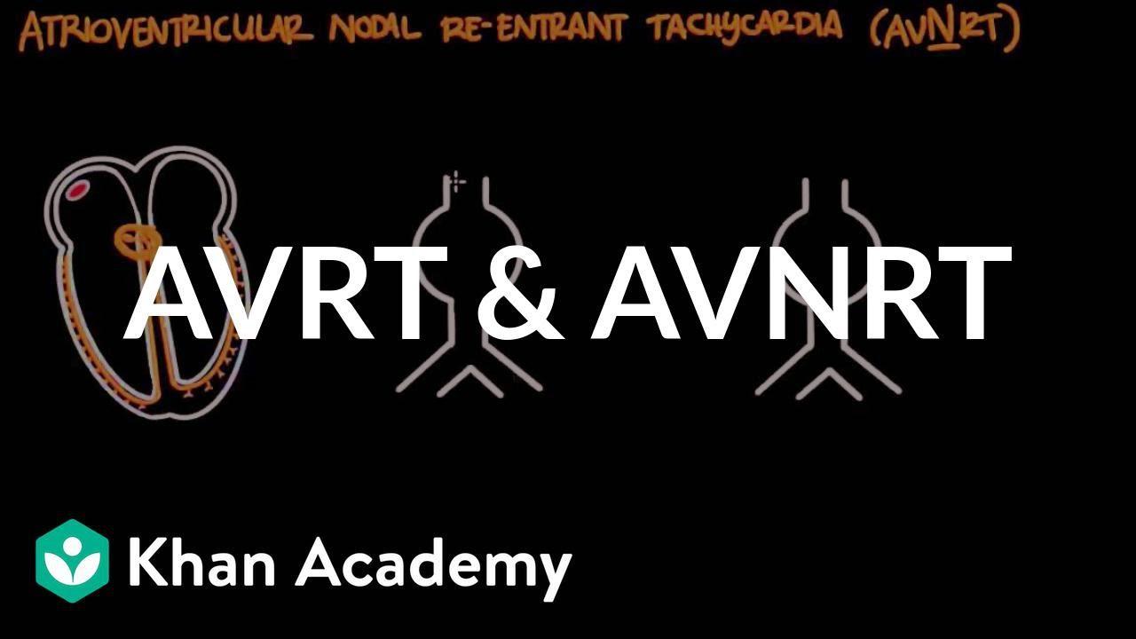 Atrioventricular reentrant tachycardia (AVRT) & AV nodal