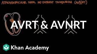Atrioventriculaire inspringende tachycardie (AVRT) & AV-nodale re-entry tachycardie (AVNRT)