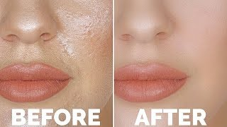 HOW TO STOP OILY SKIN!! | THE NUMBER 1 OILY SKIN TRICK YOU NEED TO KNOW!!!!