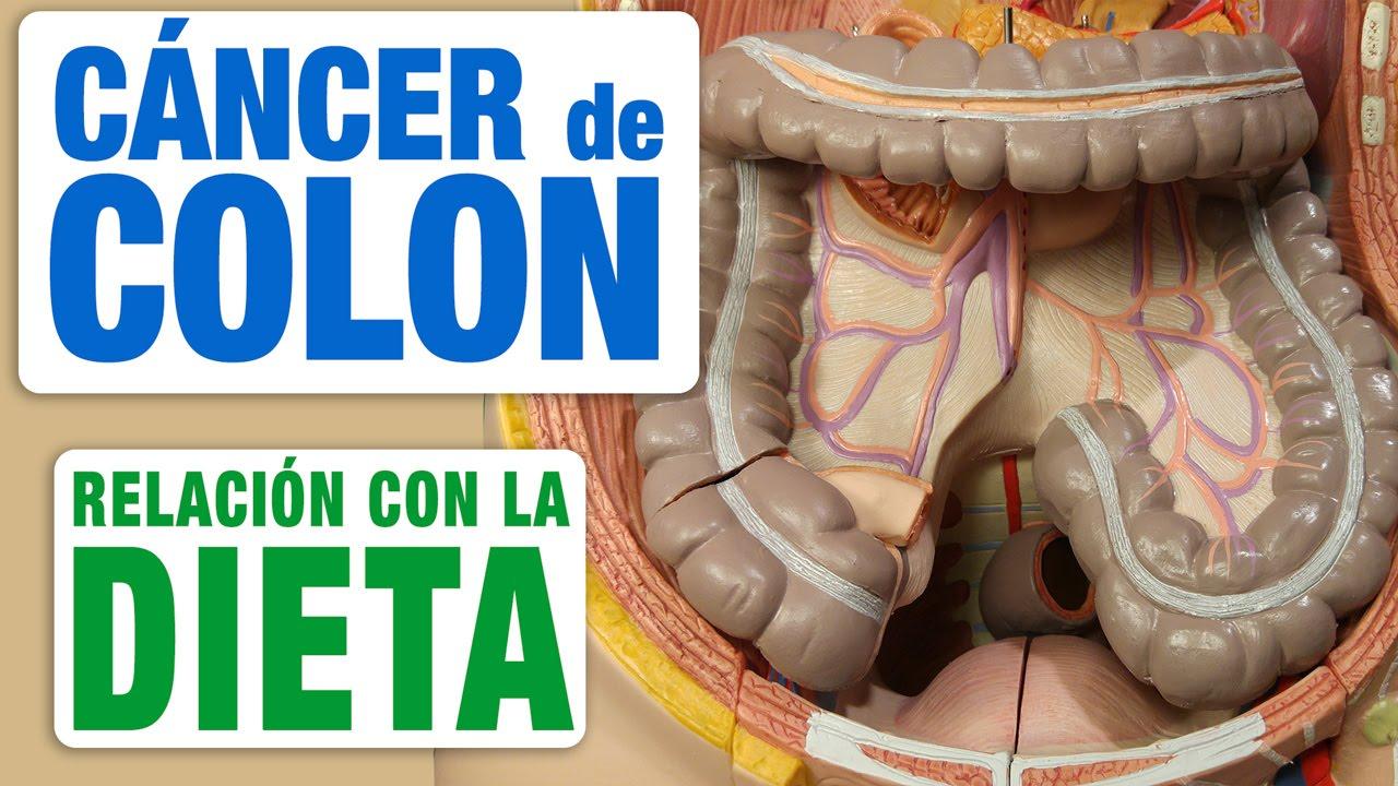 cancer de colon que comer unde să eliminați condiloamele