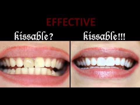 Rockstar White Professional Teeth Whitening