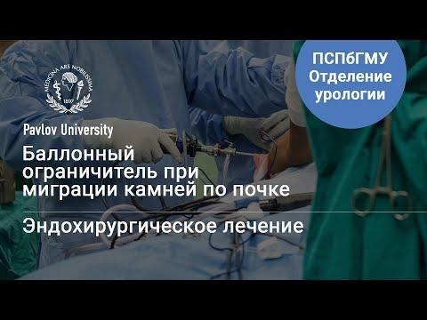 Баллонный ограничитель: миграция камней по почке | Гаджиев Нариман Казиханович, уролог-хирург
