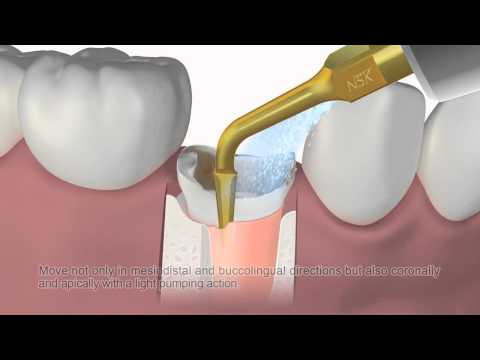 Varios series G95 (Tip for periodontal membrane removal)
