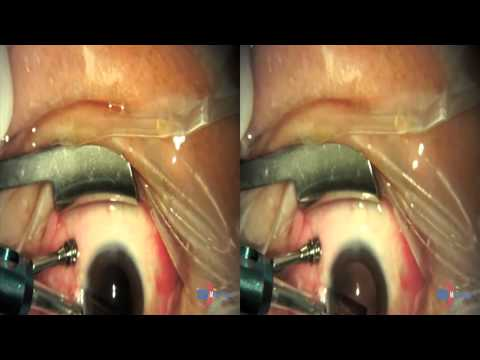 Ppv eye procedure