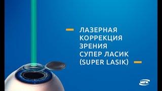 Cупер ЛАСИК (Super LASIK) - лазерная коррекция зрения(Схематичное видео о лазерной коррекции зрения по методу Cупер ЛАСИК (Super LASIK). Подробнее на нашем сайте: http://mgk..., 2015-08-12T16:32:24.000Z)