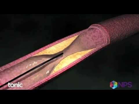Stents for blocked arteries versus medication and lifestyle changes
